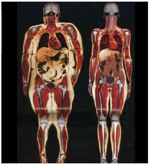 Composição Corporal: Massa Magra, Gordura Visceral e IMC