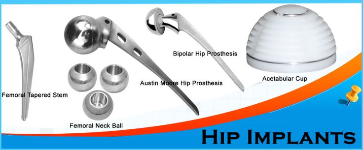 FAQs Related to Hip Implants.