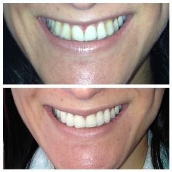 A Dental Makeover from The Tooth Whisperer