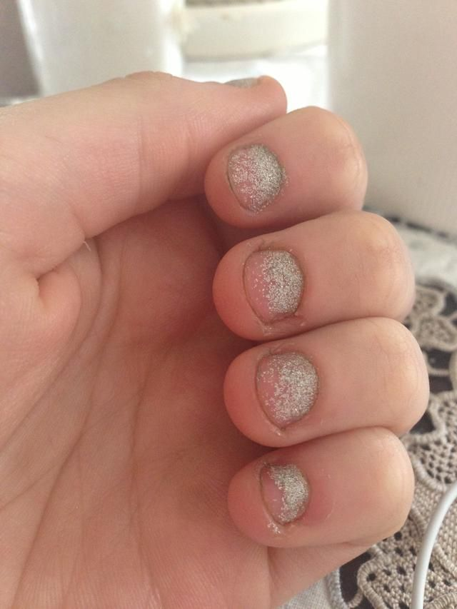 Nails Bitten To The Quick   Best Nail Designs 2018
