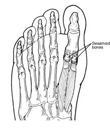 #Sesamoid pain in the #bigtoe can mimic #bunion pain.
