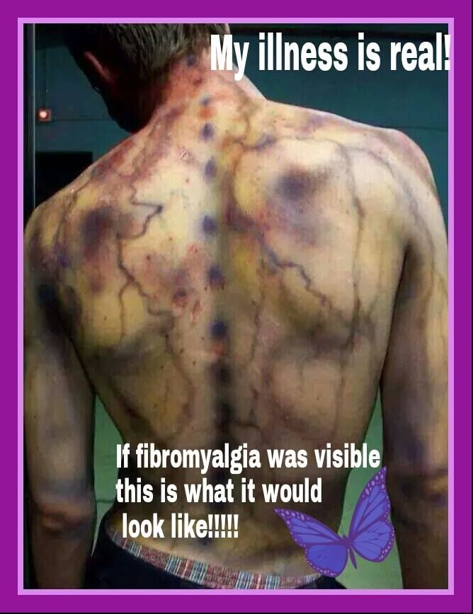 My illness is Real! If Fibromyalgia was visible this is what it would like!!!