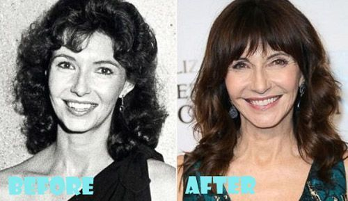 Mary Steenburgen Plastic Surgery Before and After – #Mary #Plastic #Steenburgen …