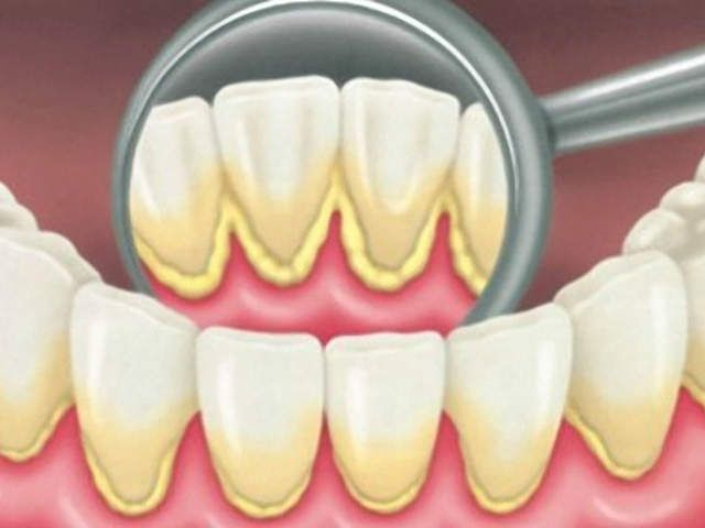 HEALTH & BEAUTY How To Remove Dental Plaque In 5 Minutes Naturally, Without Going To The Dentist !!!