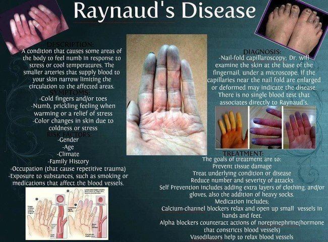 Many Lupus Patients develop this condition known as Raynaud's disease! Raynaud's disease is a condition that causes some areas of your body such as your fingers, toes, the tip of your nose and your ears to feel numb and cool in response to cold temperatures or stress. In Raynaud's disease, smaller arteries that supply blood to your skin narrow, limiting blood circulation to affected areas. Women are more likely to have Raynaud's disease…