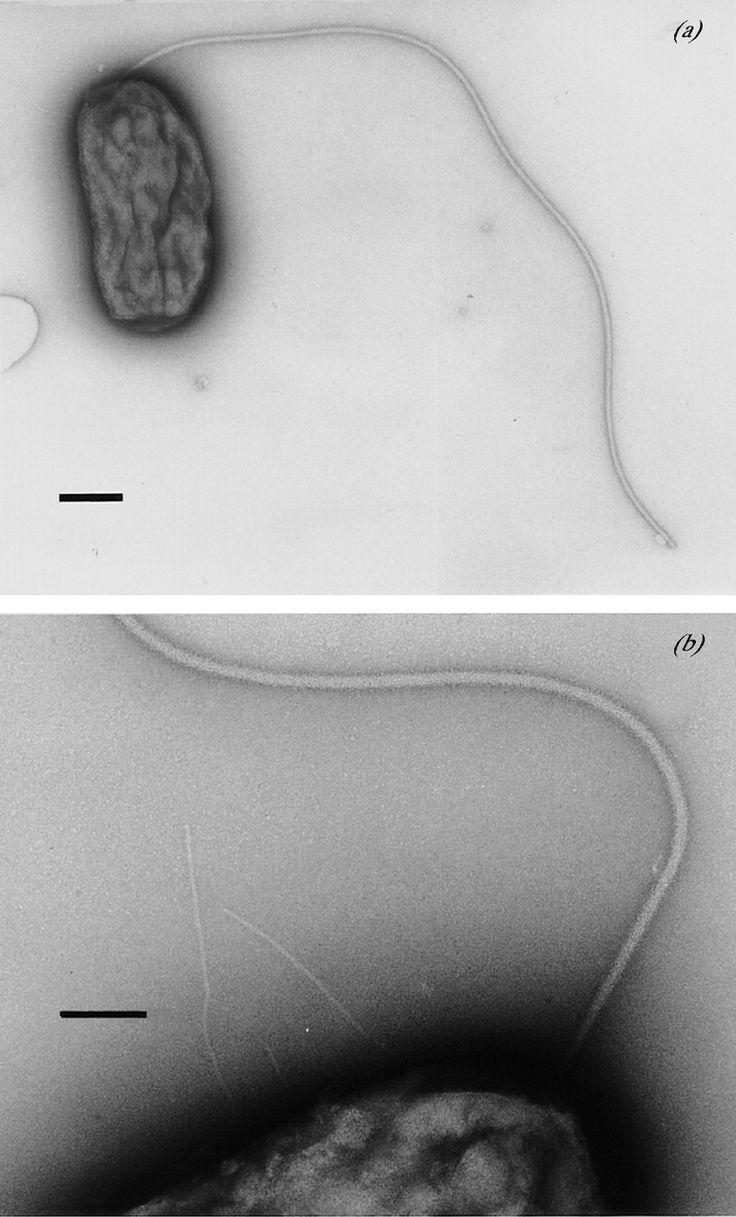 Sterolibacterium denitrificans  [000.009.336]