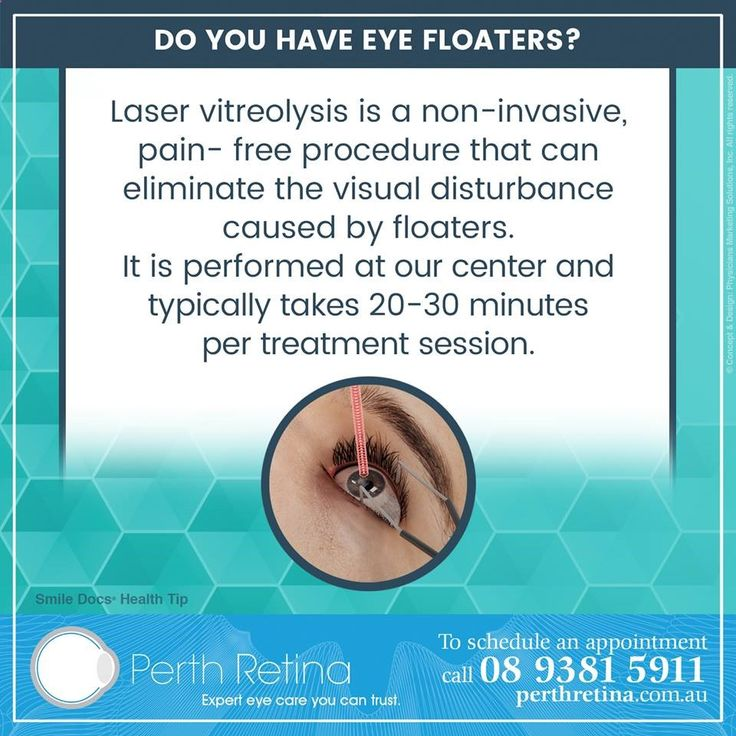 #MacularDegeneration — What are Eye Floaters? When we are young the vitreous humor of the eye is completely transparent, rather like the clear white of an egg, but with increasing age the vitreous humour degenerates, losing its shape and partially liquefying. Collagen fibers coalesce forming clumps or strands. These cause shadows on the retina that appear as dots, threads, or spiders webs. These are called floaters. Laser vitreolysis is a non-invasive, pain-free procedure that can elim...
