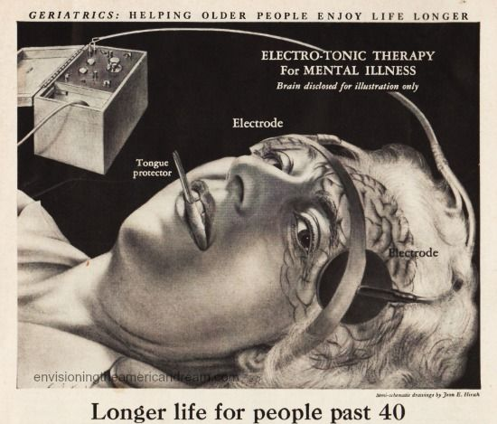 """1948. Vintage ad for electroshock therapy. ECT was developed in 1938 by Italian neuropsychiatrists and gained widespread popularity by psychiatrists as a form of treatment in the 1940s and 1950s. Media stories of shock treatment enthusiastically described the possibility of improving very ill, formerly hopeless patients. In this context permanent memory loss, confusion and the risk for vertebral fractures caused by violent convulsions """" seemed reasonable indeed"""". from…"""