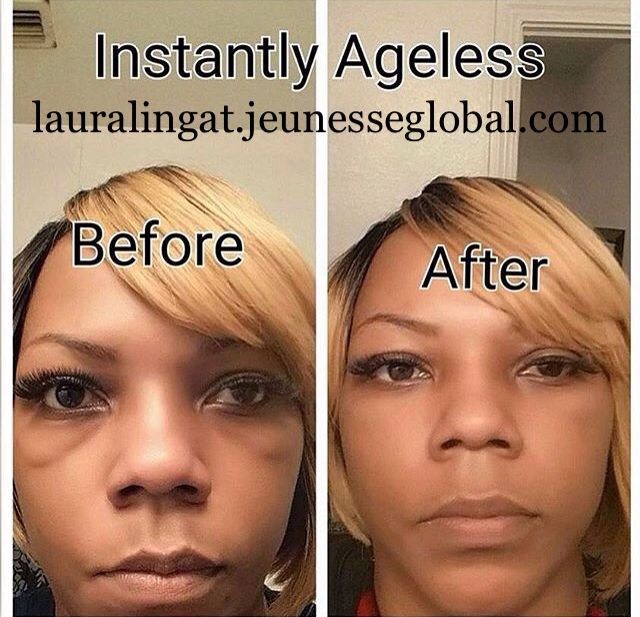 Looking for a #botox alternative? AMAZING #results without #plasticsurgery