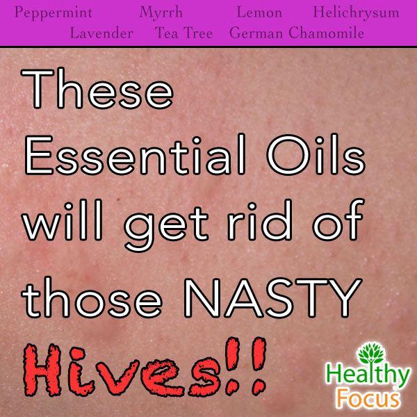 7 Proven Essential Oils for HivesJana Wilhite
