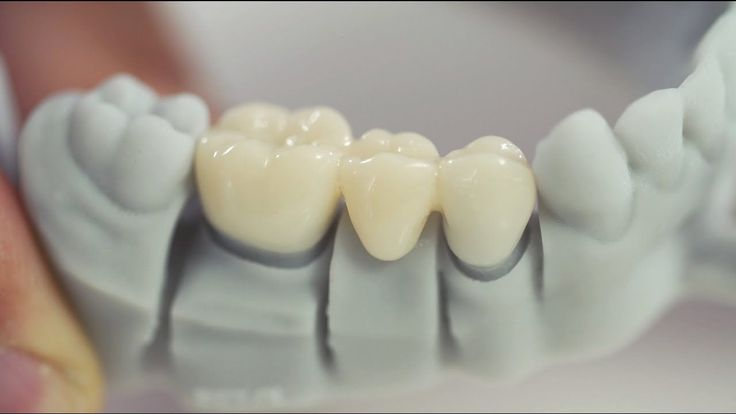#VR #VRGames #Drone #Gaming 3D Printing in the Dental Laboratory: fabrication of temporary crowns & bridges with Freeprint® temp 3-d printers, 3d printer, 3d printer best buy, 3d printer canada, 3d printer cost, 3d printer for sale, 3d printer liquid resin, 3d printer price, 3d printer software, 3d printer uv, 3d printer uv light, 3d printer uv resin, 3d printers 2017, 3d printers amazon, 3d printers for sale, 3d printers toronto, 3d printers vancouver, 3d printing, 3d prin
