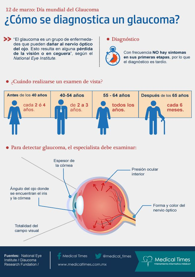 ¿Cómo se diagnostica un glaucoma?, Infografía Medical Times