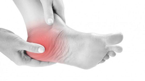 La tallonite è un disturbo doloroso molto comune che interessa il tallone. In medicina, non si parla di tallonite, ma si preferisce chiamare questa condizione tallodinia o dolore calcaneare. Cos'è la