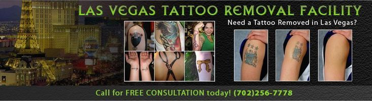Las Vegas Tattoo Removal by Tattoo Vanish.  We remove tattoos in Las Vegas and we are Las Vegas's best tattoo removal company.  We offer Non Laser Tattoo Removal, which is more effective that Laser Tattoo Removal, requires less treatments and as it is more cost effective. Call Today 702-256-7778. #tattooremovalcost #tattooremovalfacts