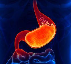 Dispepsia - O desconforto da dispepsia - Sintomas que podem também estar associados a indigestão: Dor por trás das costelas e estômago ruidoso. Estômago pesado, inchado ou dilatado (empachamento). Caibras estomacais, arrotos e liberação de cases (flatulência). Sensação de mal-estar geral e acumulo de gases.