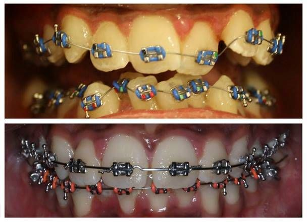 The expert says, if the person is not confident with their teeth color, shape or arrangement, then they can't serve the soothing smile and for a beautiful smile, you need orthodontic treatment. If you are looking Orthodontics treatment in Melbourne then DoncasterHill Dental clinic is the place you are looking for.