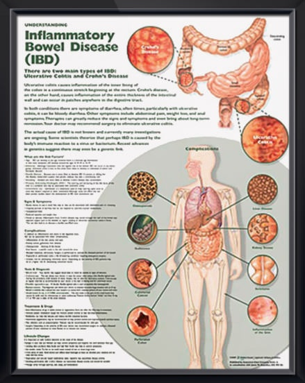 the characteristics of crohns illness an inflammatory bowel disease Introduction inflammatory bowel disease (ibd) is comprised of two major disorders: ulcerative colitis (uc) and crohn disease (cd), and these disorders have both distinct and overlapping pathologic and clinical characteristics.