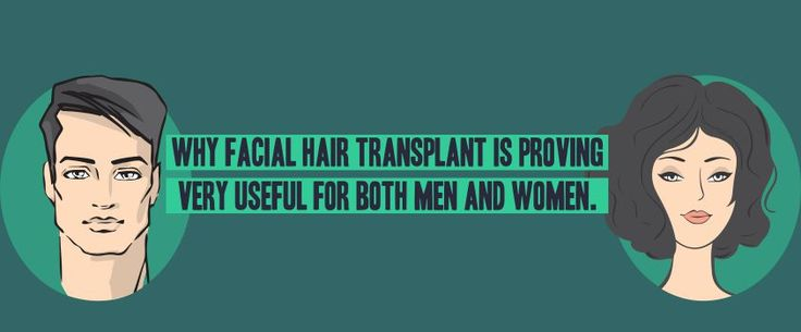 Why facial Hair Transplant is proving very useful for both Men and Women #Facial #HairTransplant #Useful #Men #Women #Eyebrows #PlasticSurgery #Hair #EnahnceClinics