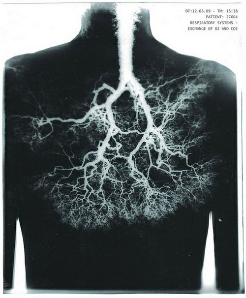 bronchi and bronchioles relationship problems