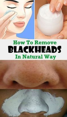 How To Remove Your Problem With Blackheads And Minimize Your Pores In Natural Way