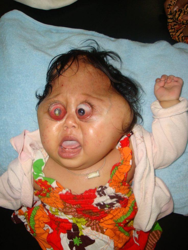 Lion Face Syndrome Crouzon syndrome