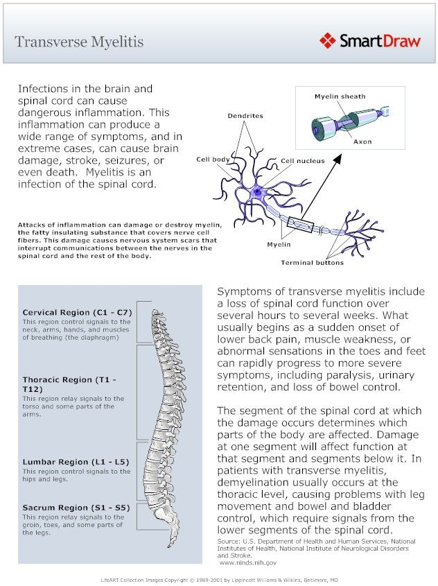 an overview of the neurological illness multiple sclerosis Degenerative neurological illness, like parkinson's disease, multiple sclerosis, lou gehrig's and alzheimer's   overview neurological disorders.