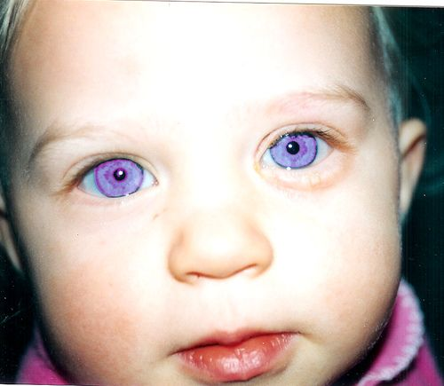 Rare violet eyes (a genetic mutation called Alexandria's Genesis) Whoops! Alexandria's Genesis is a sci-fi thing, not real. These eyes are prob fake. Violet eyes are either seen in incomplete albinism or are trick of the light with deep blue eyes.