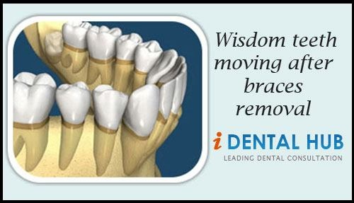 Wisdom Tooth Removal After 17 Best images about W...