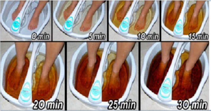 Como desintoxicar o corpo pelos pés - livre-se de toxinas e restaure as…