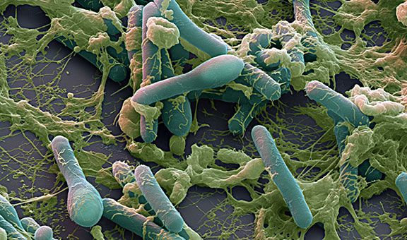 Clostridium botulinum bacteria. Coloured scanning electron micrograph (SEM) of Clostridium botulinum bacteria (rod-shaped), the cause of bot...