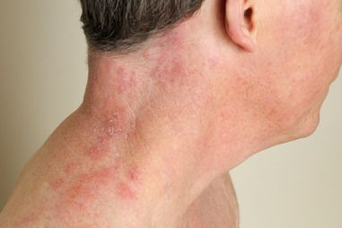 Shingles is a painful rash caused by the varicella-zoster virus.