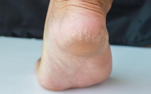 Rissige Fersen sind nicht nur unschön, sondern auch schmerzhaft und können sich infizieren. Natürliche Behandlungen verhelfen dir wieder zu gesunden Füßen.