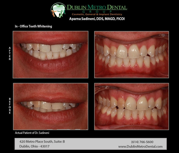In-Office Teeth Whitening | Smile even brighter on your special day - Dr. Sadineni used Opalescence Boost in-office teeth whitening system to enhance discolored teeth couple of shades lighter than they were before to increase confidence level in his smile. #teethwhitening #homewhitening #opalescence #whiteningtrays #opalescenceboost #oralhealth #brightersmile #healthiersmile #zoomteethwhitening