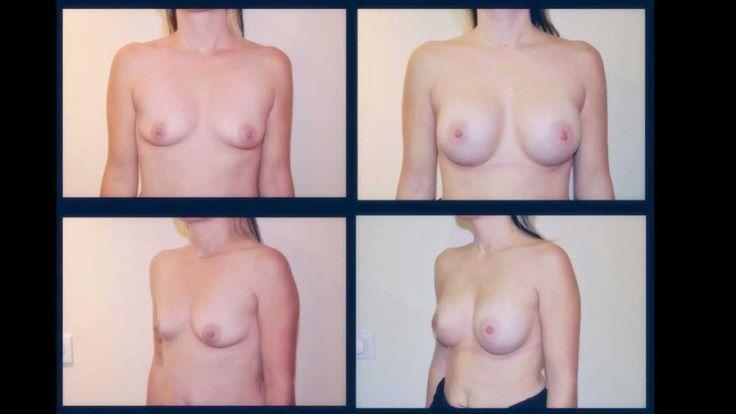 Augmentation mammaire taille c