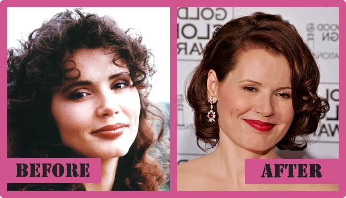 Geena Davis Plastic Surgery Before And After Geena Davis Plastic Surgery  #Geena…