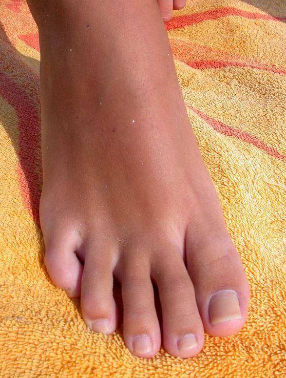 285 Best Natural Toes Images On Pinterest  Female Feet -9646