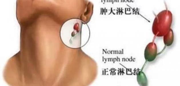 ما هي أعراض التهاب الغدة اللمفاوية Lymph Nodes Pacifier Children