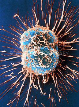 Cervical cancer cells dividing