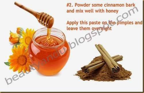 Pimple Cure Overnight Home Remedies -Want pimples and acne gone fast? Try theacnecode.com