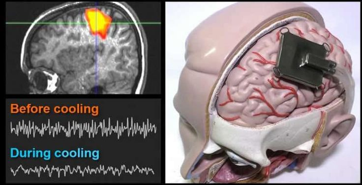 'Using computer simulation techniques, scientists have gained new insights into the mechanism by which lowering the temperature of specific brain regions could potentially treat epileptic seizures. The results are published in PLOS Computational Biology.'  Simulating a Brain-Cooling Treatment That Could One Day Ease Epilepsy: