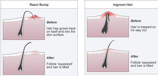 Ingrown hair and razor bumps