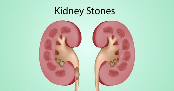 1000 Images About Kidney Stones On Pinterest Gallstone