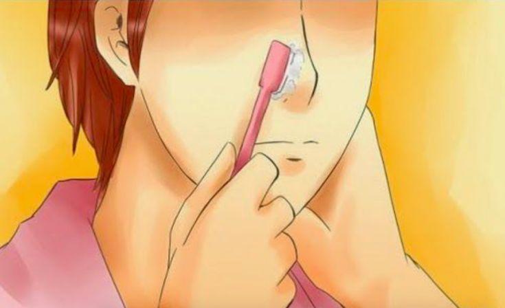 Éliminez totalement vos points noirs avec une brosse à dents