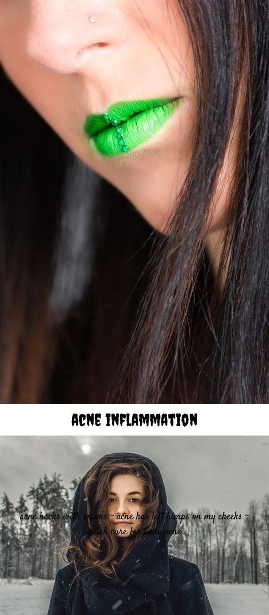 Delightful Facial hair acne hormone imbalance excellent idea