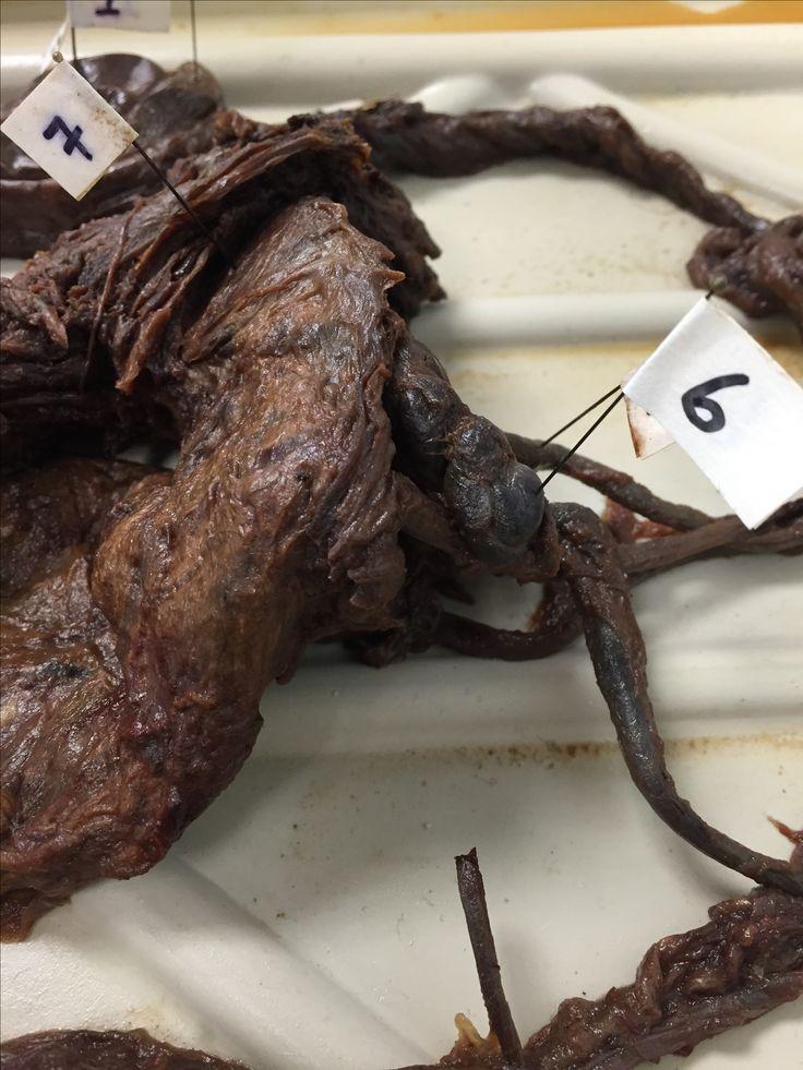 male reproductive system specimen 1  testes 2  epididymus