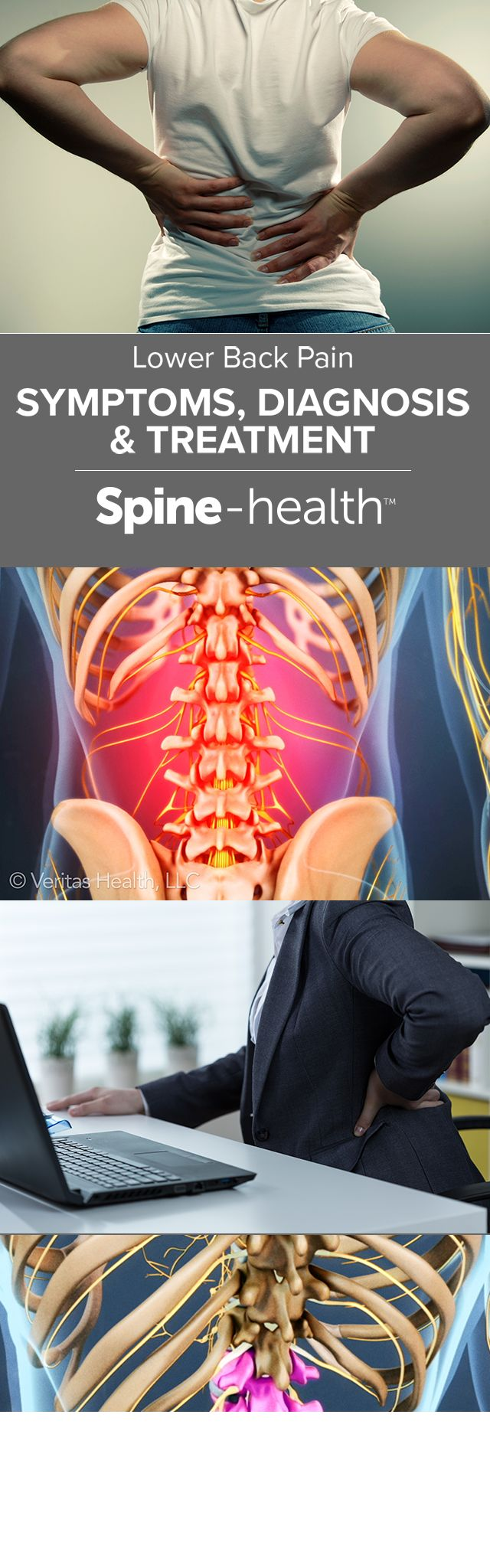 Lower Back Pain Symptoms, Diagnosis, and Treatment                                                                                                                                                                                 More