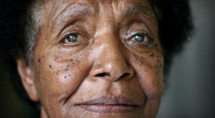 La cataracte : Des chercheurs américains ont développé un nouveau médicament qui peut être administré directement dans l'œil avec une pipette pour rétrécir