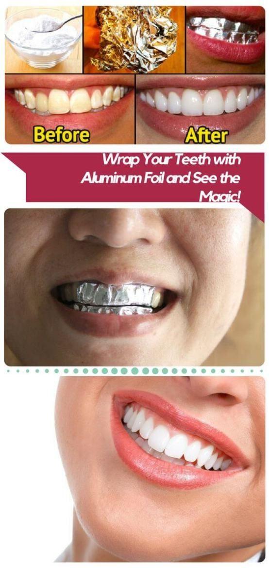 Zähne aufhellen mit Hausmitteln - DIY Bleaching