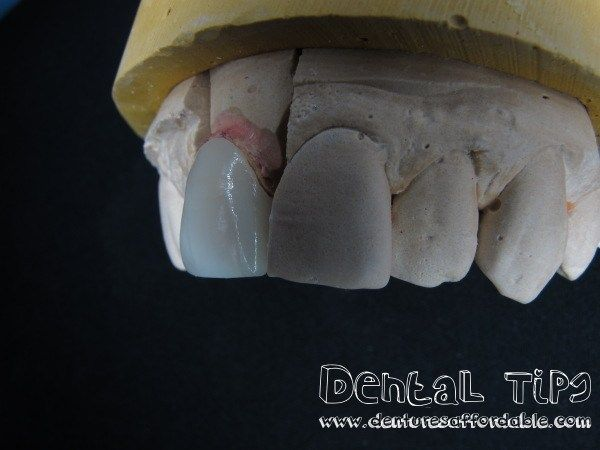 Affordable Dentures – Cost of Dentures – Cost of Dental Implants #dental #plan #providers http://dental.remmont.com/affordable-dentures-cost-of-dentures-cost-of-dental-implants-dental-plan-providers/  #dentures cost # Dental CrownsSynonyms. Jacket, Jacket Crown, Crown Restoration, Cap A dental crown is a dental restoration that covers a tooth to restore it to its normal shape, size and function. Its purpose is to strengthen or improve the appearance of a tooth. A dental crown can – restore a…