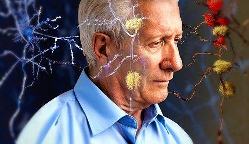 Negativa föreställningar om åldrande ökar risken för Alzheimers